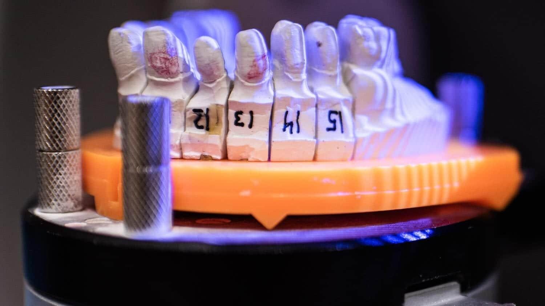 Escaneado 3d con luz estructurada de pieza dental