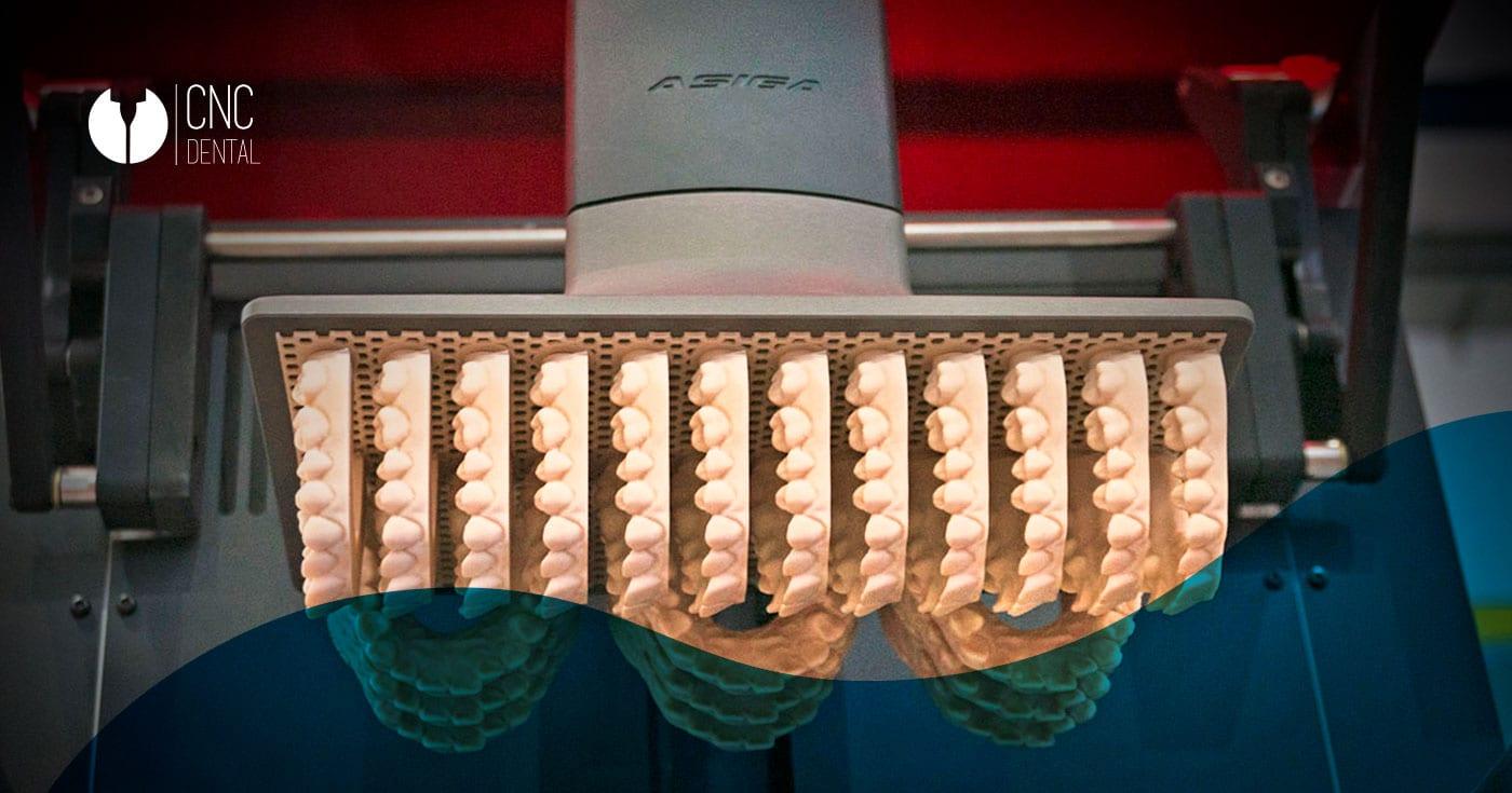 Innovación tecnológica y materiales en desarrollo en el sector dental para estructuras dentales de alta estética