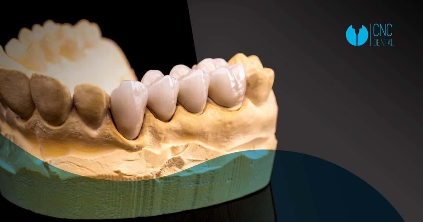 El zirconio, sus numerosas ventajas y su alta calidad obtienen acabados impecables en la fabricación de estructuras dentales.