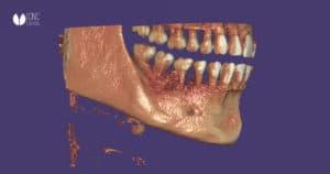 En CNC Dental revolucionamos el sector con el autoimplante dental gracias a los conocimientos avanzados y la impresión 3D
