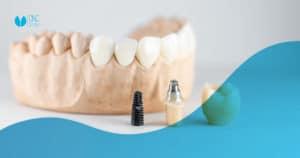 Es normal que te surjan cuestiones al plantearte la posibilidad de ponerte un implante dental. En CNC Dental queremos responderlas.