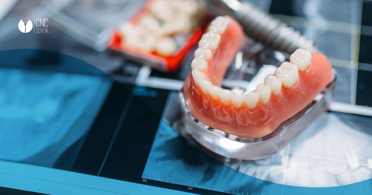 """protesis dentales removibles completas. La dentadura de """"quita y pon"""""""