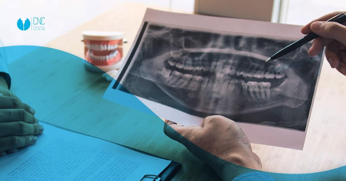 Agenesia dental, conoce los tipos y sus posibles tratamientos