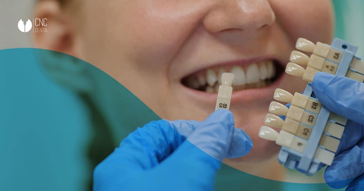 La erosión dental es de las principales afecciones que terminan por afectar a los nervios de tu boca. Detecta las señales a tiempo.