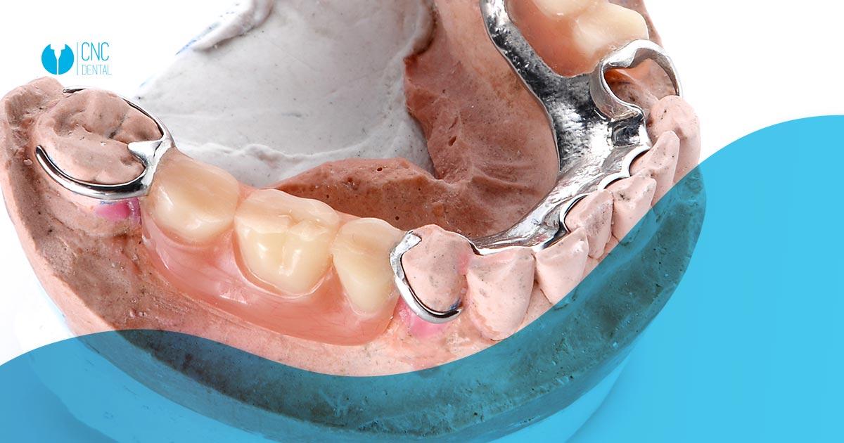 prótesis parciales removibles